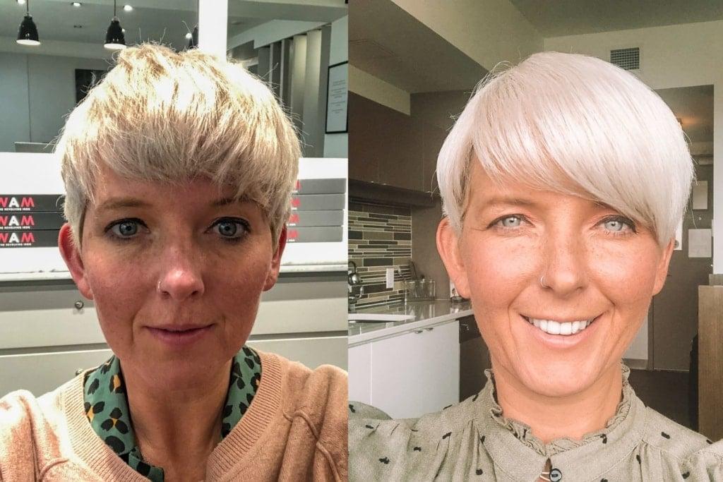 best-hair-treatment